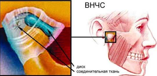 Дисфункция внчс - симптомы  и лечение