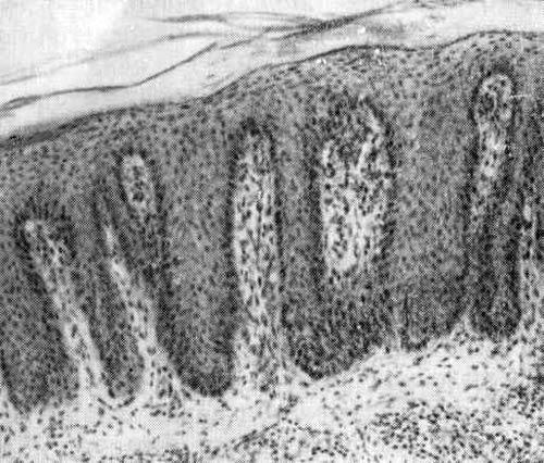 Патоморфологические процессы на слизистой оболочке полости рта. элементы поражения, патоморфологические процессы. - терапевтическая стоматология