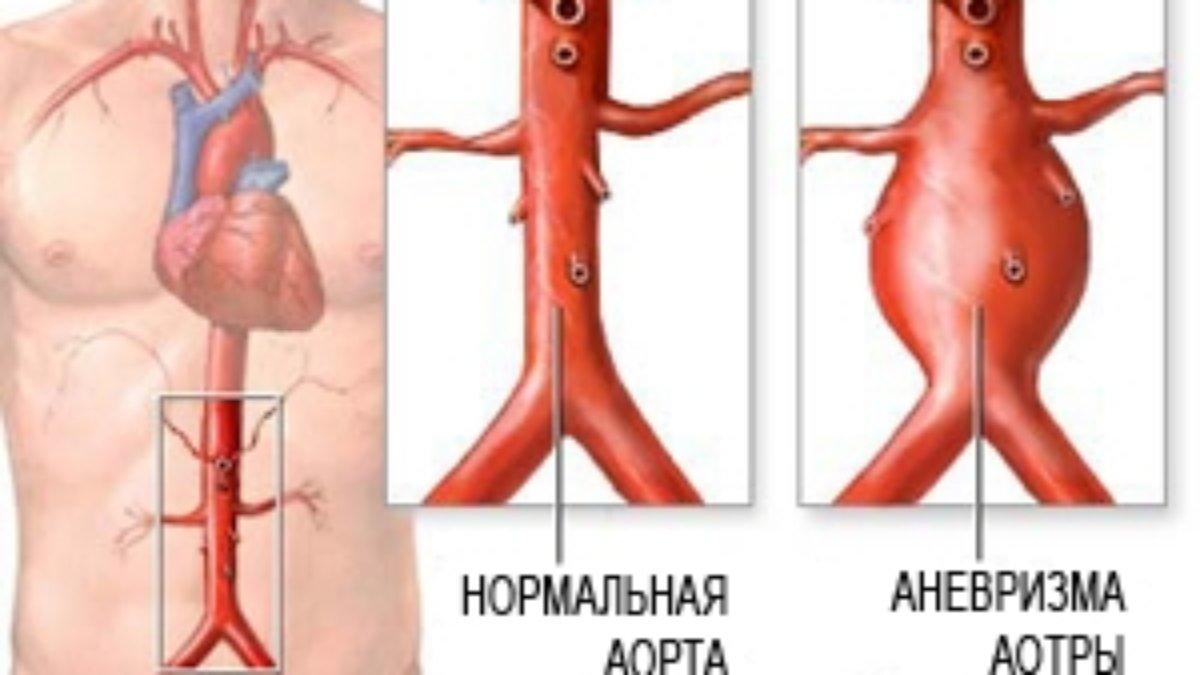 Аневризма брюшной аорты – симптомы, лечение, операция, разрыв