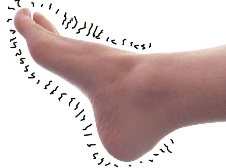 Полинейропатия верхних и нижних конечностей: причины, симптомы и лечение