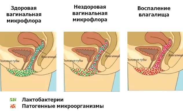 Дисбактериоз влагалища, его причины, симптомы и лечение