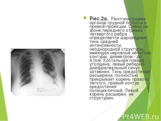 Подробная расшифровка рентгенографии легких