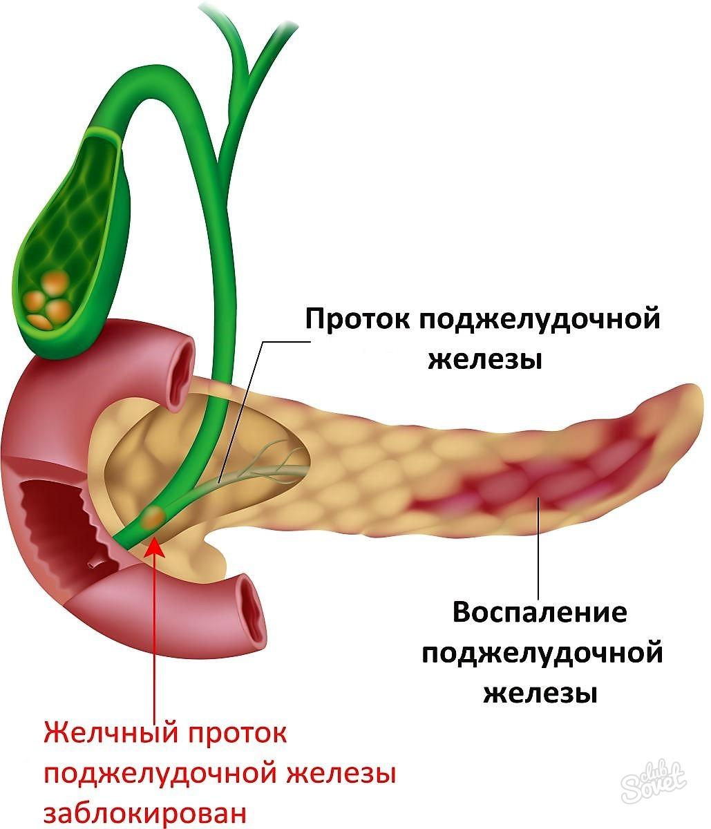 Поджелудочная железа: симптомы заболевания, лечение медикаментами