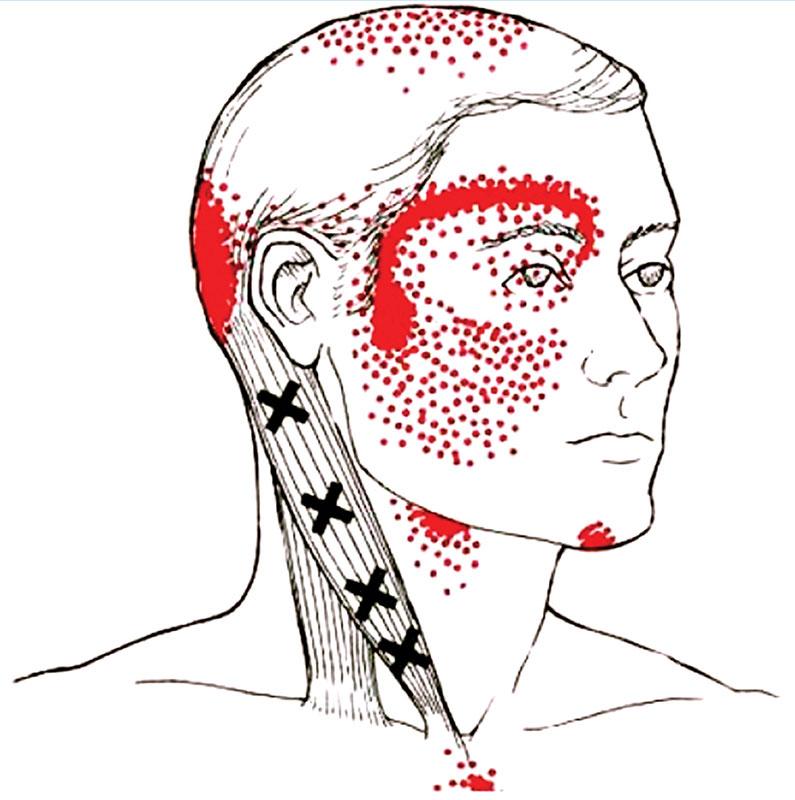 Цервикокраниалгия: истинные причины и лечение синдрома