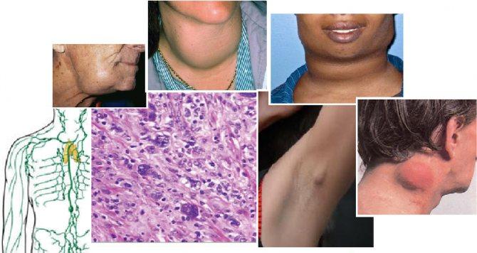 Лимфома ходжкина – симптомы, лечение, стадии