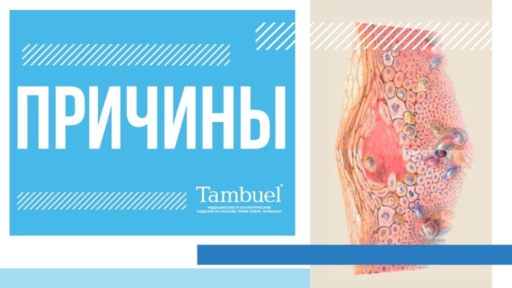 Сухая экзема – причины, симптомы и лечение   derma-expert.ru