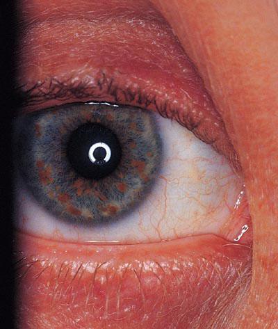 Нейрофиброматоз 1 типа: что это такое, симптомы и лечение болезни реклингхаузена у детей