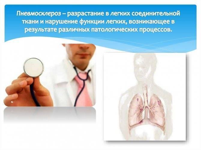 Хронические инфекции: что такое туберкулёз и чем он опасен