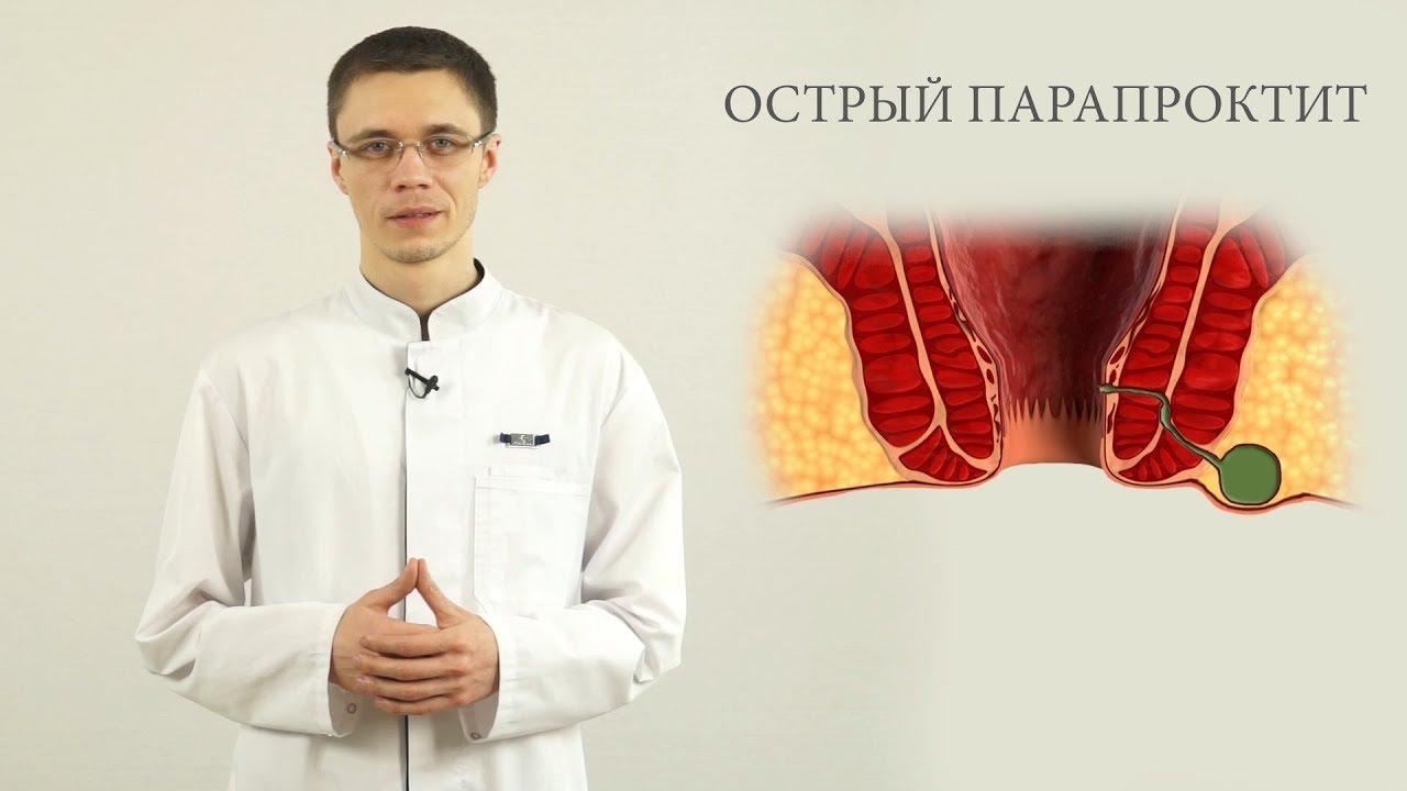 Абсцессы прямой кишки симптомы и лечение - острый парапроктит