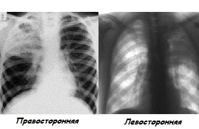 Лечение правосторонней пневмонии у ребенка. какие отличия верхнедолевой и нижнедолевой формы?