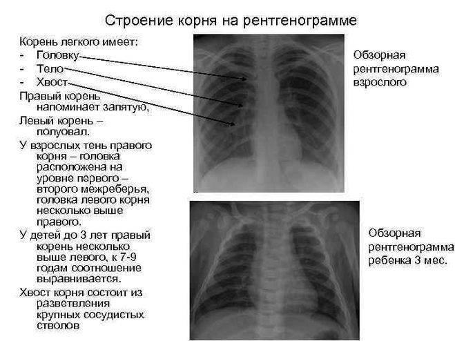 Может ли рентген не показать пневмонию?