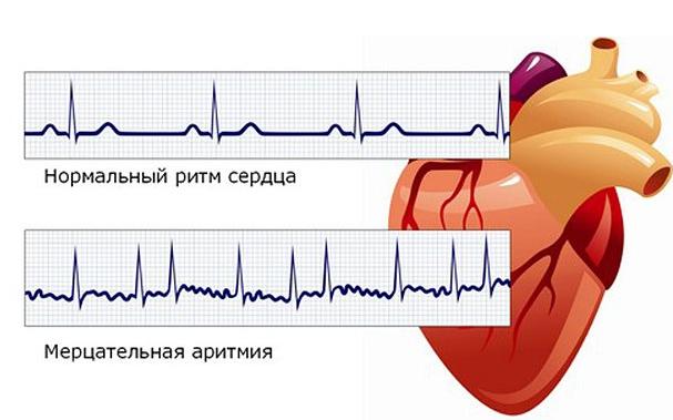 Аритмия сердца: что это такое и как лечить, симптомы, причины