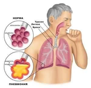Антибиотики при лечении пневмонии у взрослых