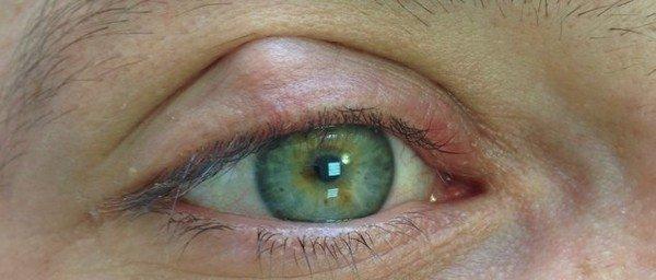Халязион, лечение без операции