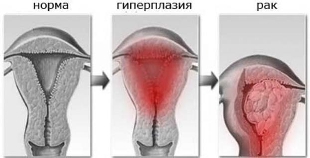 Очаговая гиперплазия эндометрия