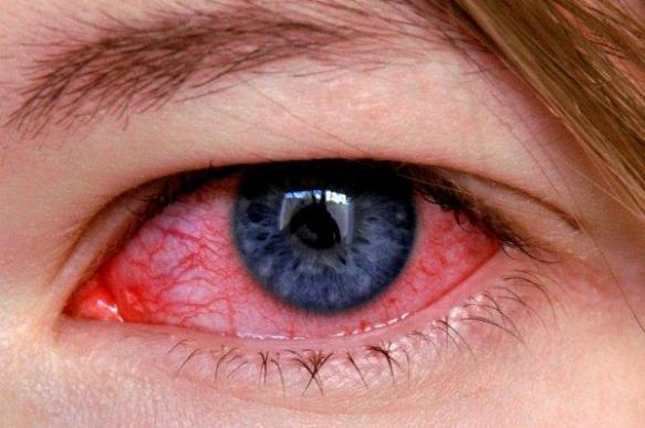 Кератит – симптомы, причины, виды и лечение кератита