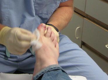 Вросший ноготь на ноге, на большом пальце - даление, лечение в домашних условиях. ноготь врос - что делать?