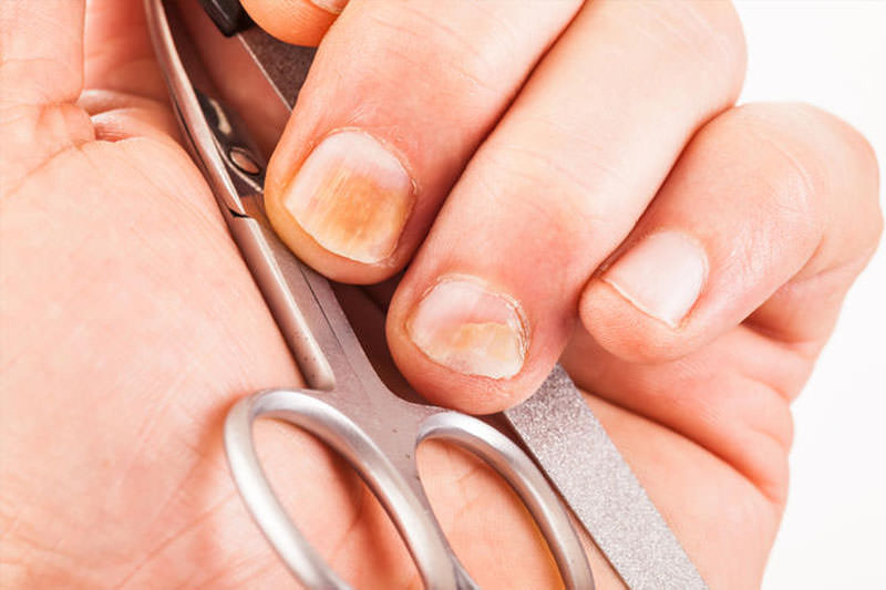 Болезни ногтей, при которых изменяется их форма и размер