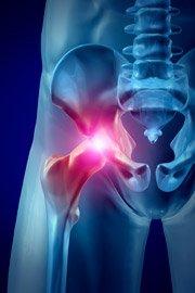 Коксартроз тазобедренного сустава 1 степени: причины, симптомы, лечение, профилактика