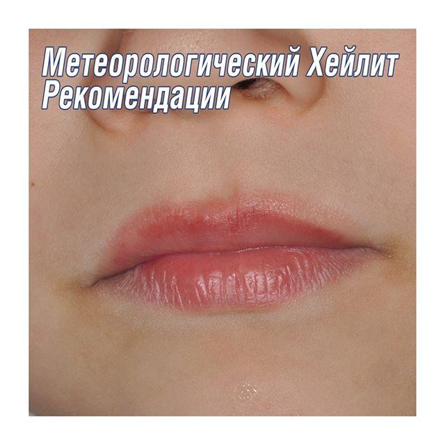 Заеды в уголках рта, причины и лечение