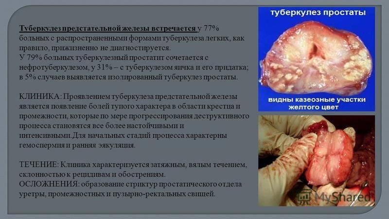 Туберкулез простаты: что это, симптомы, диагностирование и лечение заболевания, а также какие есть профилактические меры