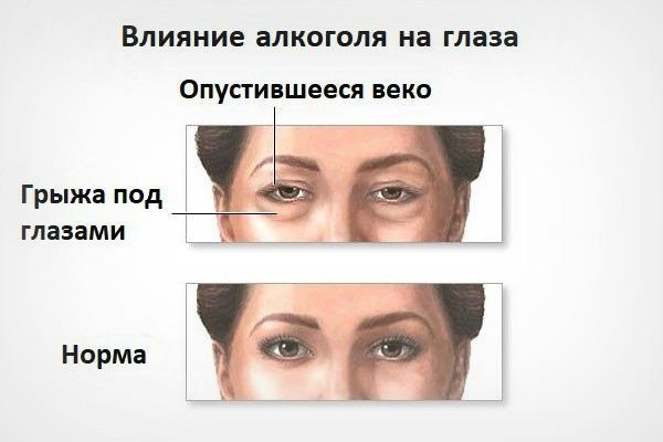 Глаза наркомана, как признак употребления наркотиков