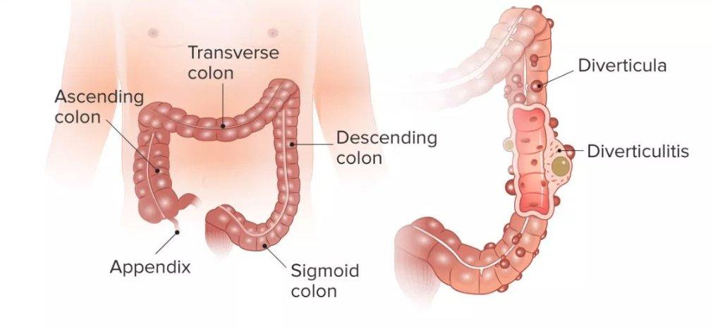 Что важно знать о дивертикулёзе толстого кишечника