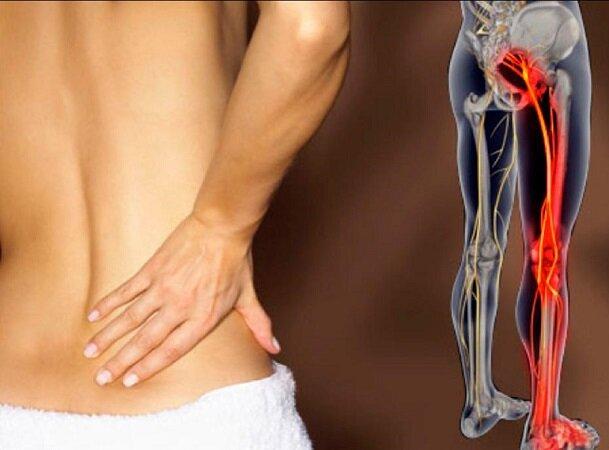 Симптомы, диагностика и лечение люмбоишиалгии