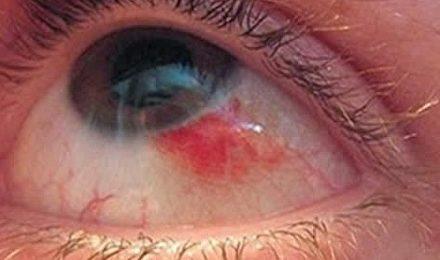 Деструкция стекловидного тела – симптомы, лечение, формы, стадии, диагностика