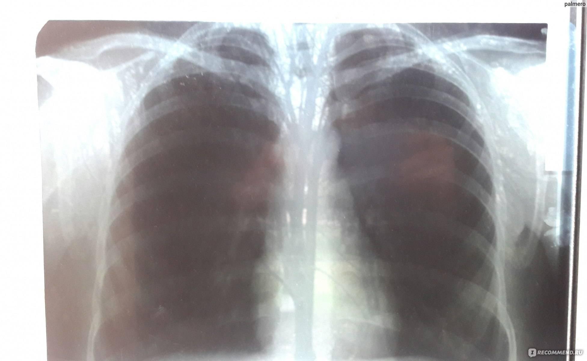 Что пишут в рентгене при пневмонии