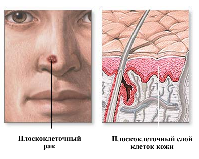 Базалиома: фото, симптомы, лечение, стадии и прогноз жизни