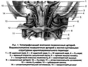 Что это такое – синдром вертеброгенной цервикокраниалгии
