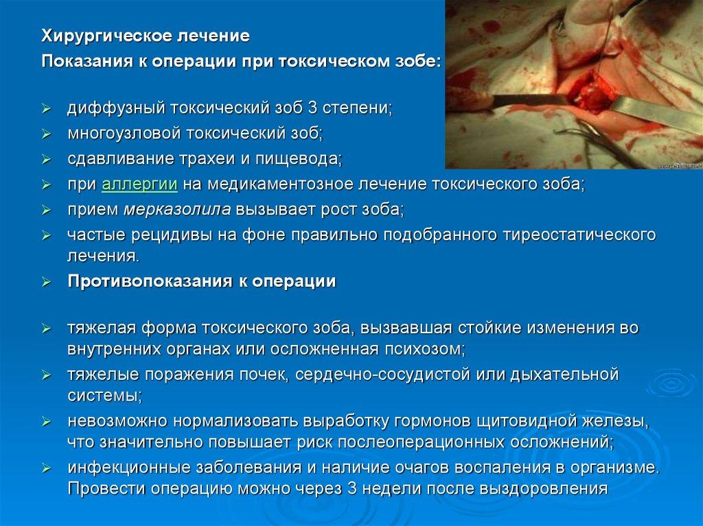 Причины появления эндемического зоба у взрослых и детей, терапия заболевания