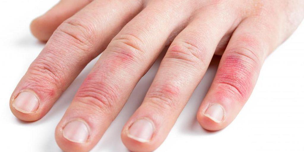 Экзема на лице — лечение, причины, симптомы