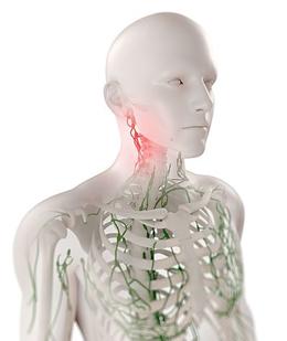 Аксиллярная лимфаденопатия: что это, вероятные причины, симптомы и лечение