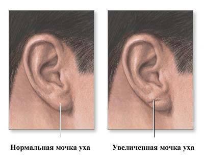 Чем лечиться при воспалении мочек ушей