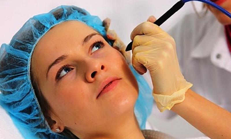 Просянка или милиумы на лице: причины и лечение