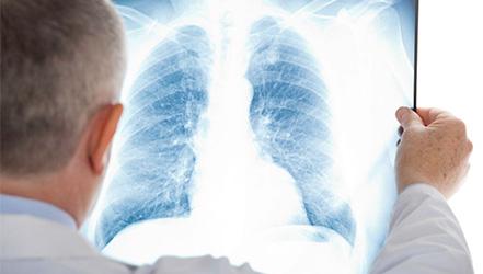 Как нужно питаться при пневмонии?