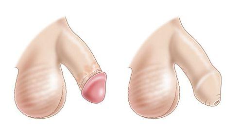 Фимоз у мужчины: осложнения и их коррекция, плюсы и минусы методов лечения фимоза у взрослых
