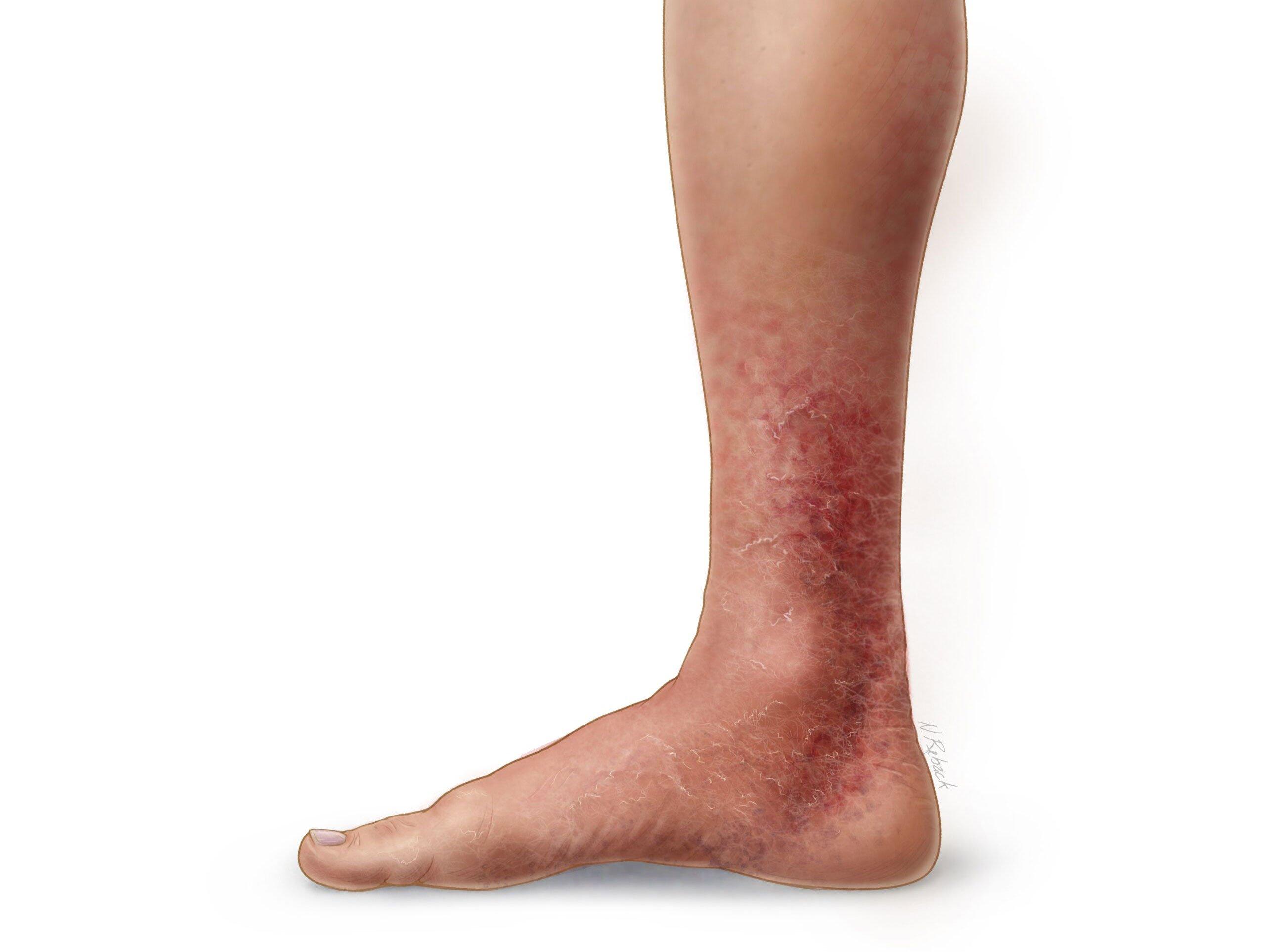 Тромбы: образование, симптомы, отрыв - в ноге, сердце
