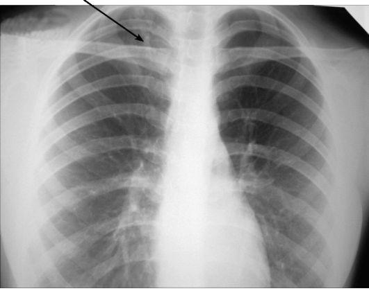 Особенности проведения рентгена легких после перенесенной пневмонии