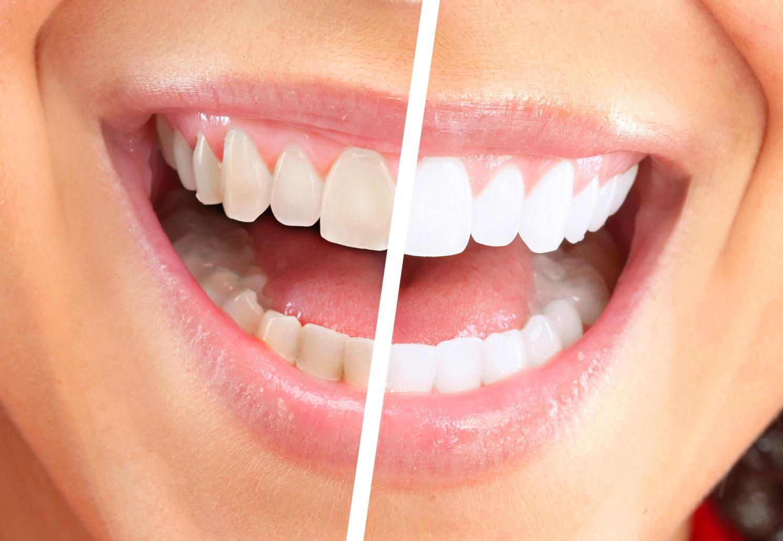 Как правильно отбеливать зубы содой и перекисью водорода?
