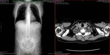 Компьютерная томография легких при туберкулезе: как делается и побочные эффекты
