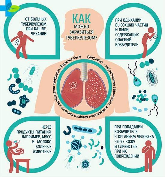 Туберкулез у взрослых: симптомы, первые признаки                                                                               22325                                                                   0