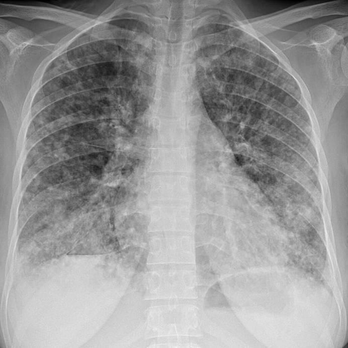 Значимость рентгенографии при туберкулезе