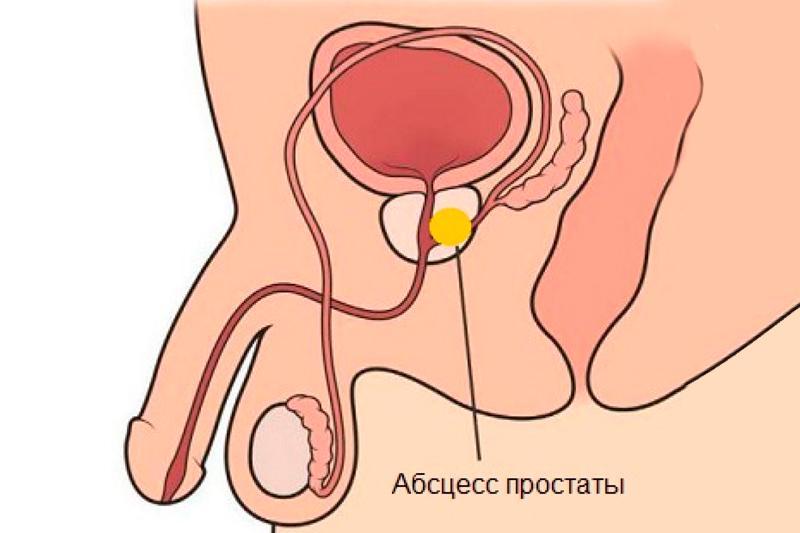 Заболевание простаты у мужчин лечение