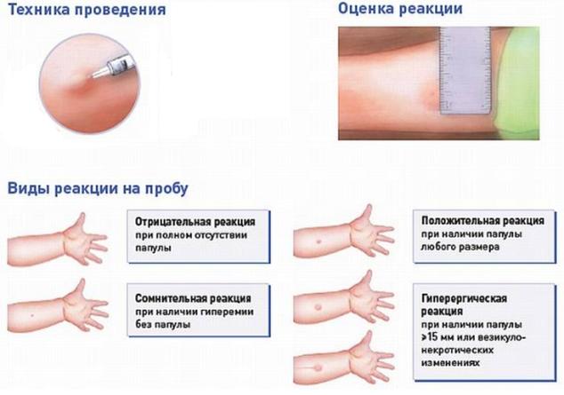 Комаровский - проба манту: увеличенный размер, реакция манту у ребенка, сравнение с диаскинтестом