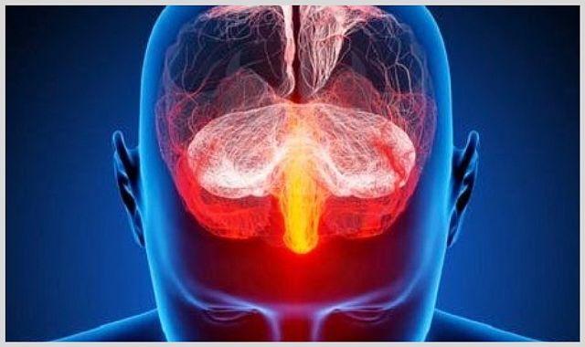 Арахноидит. кистозно-слипчивый процесс