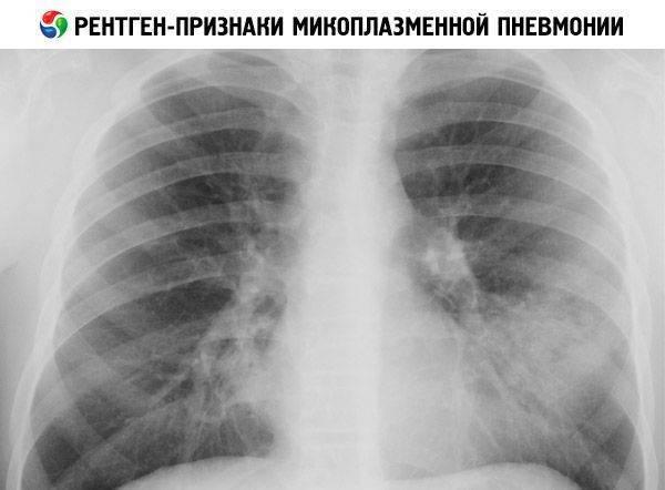 Как проявляется микоплазма пневмония у детей