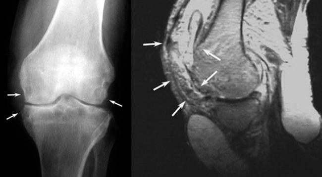Туберкулез костей и суставов: первые признаки и симптомы, лечение, как передается